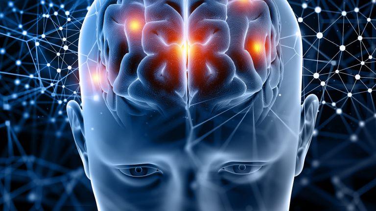 Brain resistance
